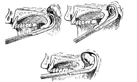 Этапы аденотомии