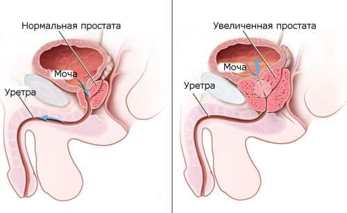 Боли после операции на предстательной железе