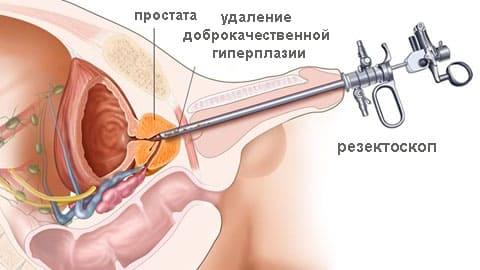 Помощь при аденоме предстательной железы
