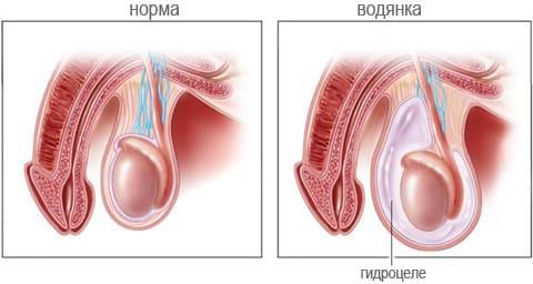 Водянка оболочек яичка (Гидроцеле)
