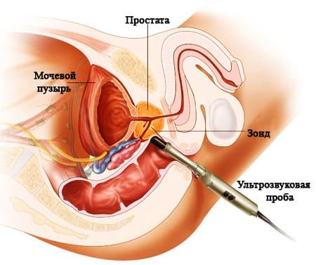 Стоимость лечения простатита украина