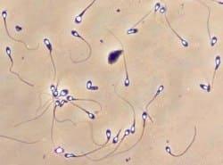 Тератозооспермия что это такое