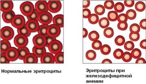 Анемия при беременности - Причины, симптомы и лечение