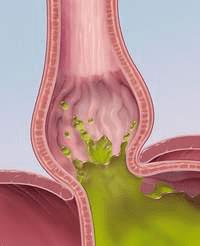 Изжога при беременности - Причины, симптомы и лечение