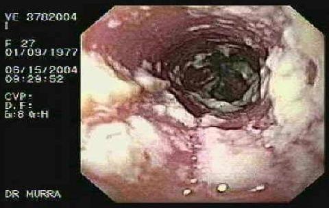 Кандидоз. при беременности
