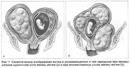 Увеличивается миома при беременности