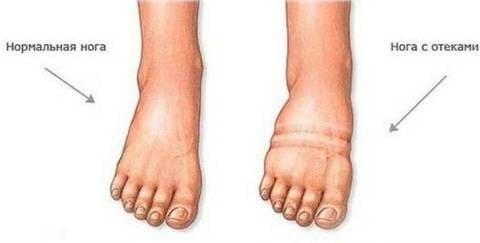 Отеки ног при беременности - Причины, симптомы и лечение