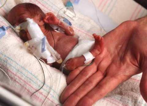 Роды на 22 неделе беременности