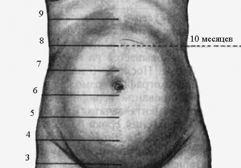 Всдм при беременности
