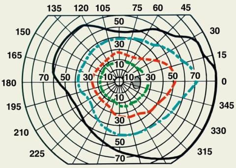 Схема нормальных границ поля