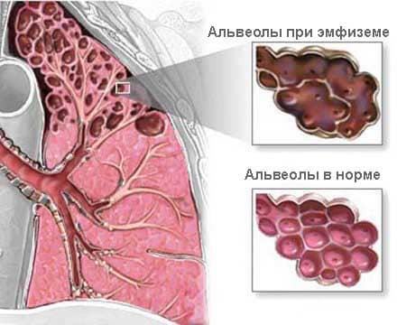 Схема строения альвеол при