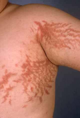 steroid back spots