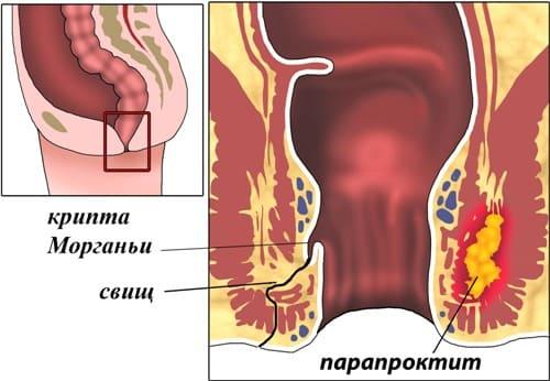 Расположение анальной трещины
