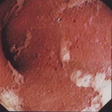 типичная эндоскопическая картина язвенного колита