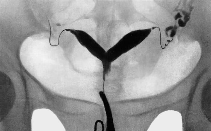 Метросальпингограмма при двурогой матке