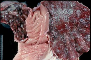 Эндометрит. На рисунке: розовая – нормальная ткань; остальное - воспалительные изменения