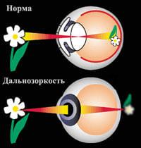 Как восстанавливают зрение очки с дырочками