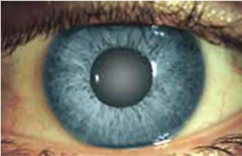 Незрелая катаракта