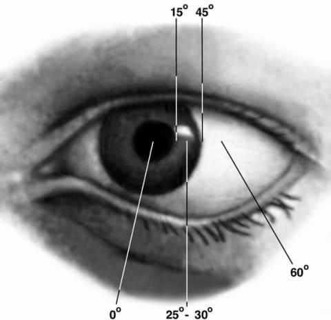 Операция на восстановление зрения после отслойки сетчатки