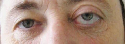 Опухоль орбиты глаза