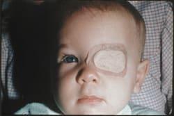 Коррекция зрения методом lasik казань