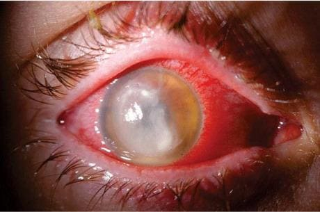 Травмы глаза - Причины, симптомы и лечение