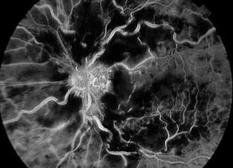 Флуоресцентная ангиография