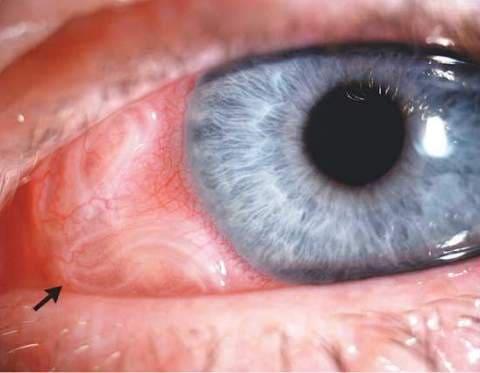дирофиляриоз у человека фото глаза
