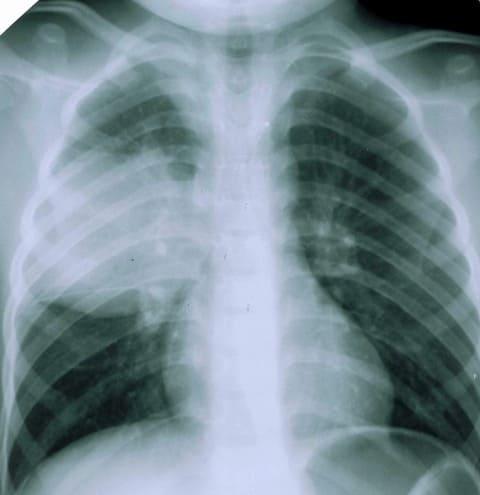 паразиты в легких человека симптомы