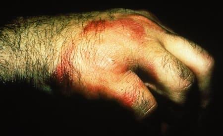 Симптомы эризипелоида