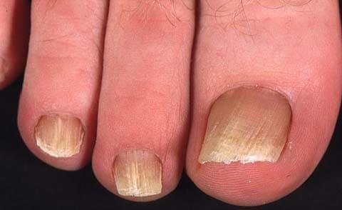 Действенные методы лечения грибка между пальцами ног.