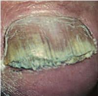 Нокоть пораженный грибком, грибковое заболевание