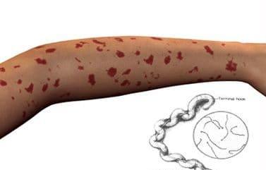 Геморрагии при лептоспирозе