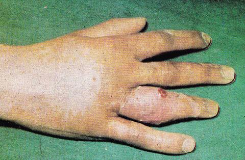 Симптомы суставного панариция