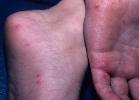 Синдром рука-нога-рот, сыпь на ладонях и стопах
