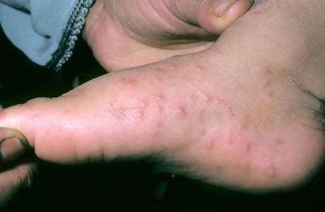 Синдром рука-нога-рот, сыпь на стопах у ребенка