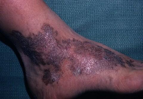 саркома на ноге фото
