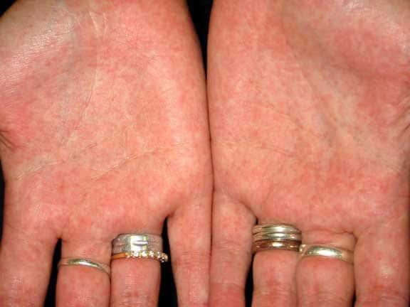 Сыпь на ладонях при скаралатине
