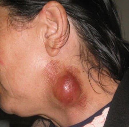 Симптомы туляремии - бубон