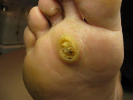 Папиллома тип 5