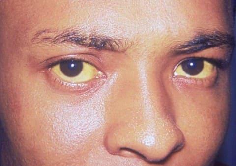 Желтуха при желтой лихорадке