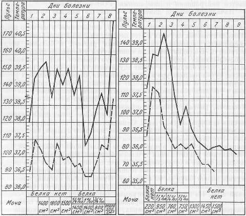 Двухволновая температурная кривая при желтой лихорадке
