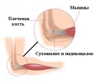 Болезнь локтевого сустава эпикондилит