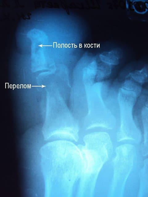 рентгенологическая картина остеомиелита