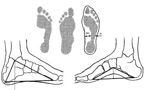 Определение степени плоскостопия по рентгенограмме