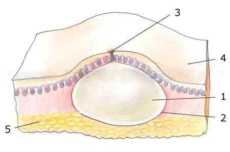 Атерома - Причины, симптомы и лечение