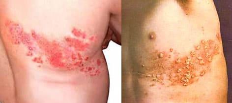 Опоясывающий лишай (герпес зостер) симптомы