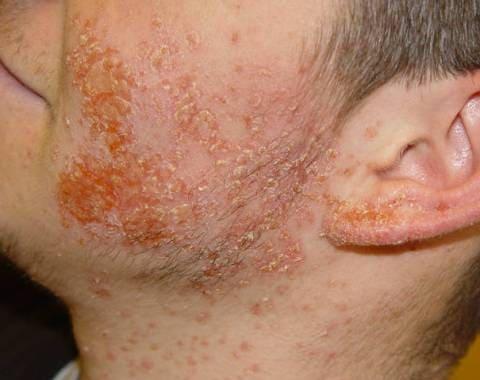 Пиодермии (гнойничковые заболевания кожи)