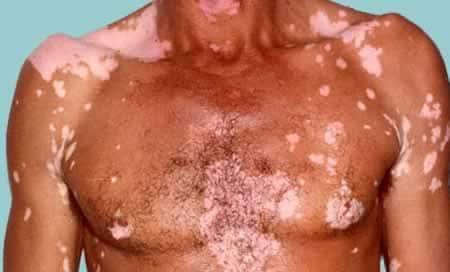 Симптомы витилиго светлые пятна на коже