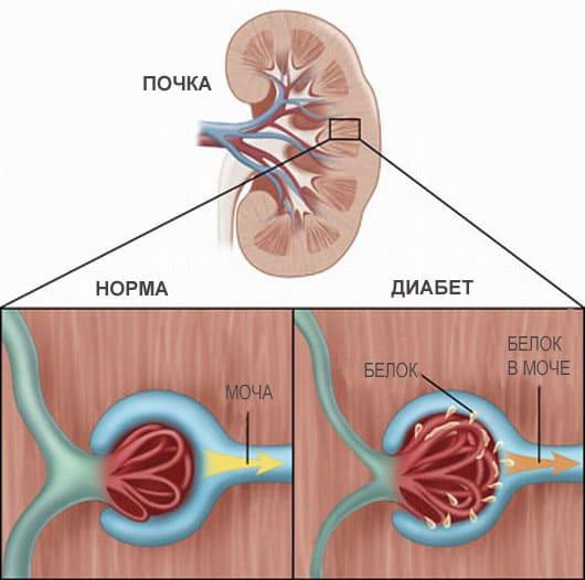 Диабетическая нефропатия - Причины, симптомы и лечение. МЖ.